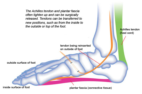 The Achilles tendon and plantar fascia often tighten up and can be surgically released. Tendons can be transferred to new positions, such as from the inside to the outside or top of the foot.