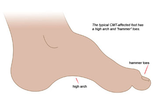"The typical CMT-affected foot has a high arch and ""hammer"" toes."