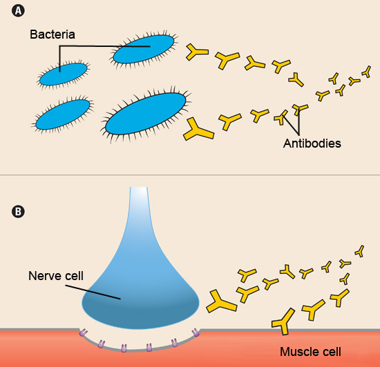Normally (A), the immune system releases antibodies to attack foreign invaders, such as bacteria. In autoimmune diseases (B), the antibodies mistakenly attack a person's own tissues. In myasthenia gravis, they attack and damage muscle cells.