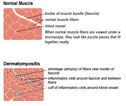 In dermatomyositis, inflammatory cells are concentrated around blood vessels at the borders of the muscle fiber bundles (fascicles), and fibers in this region often shrink. Inflammatory cells can sometimes be seen forming a cuff around blood vessels.