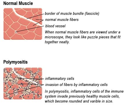 polymyositis (pm) - diagnosis | muscular dystrophy association, Muscles