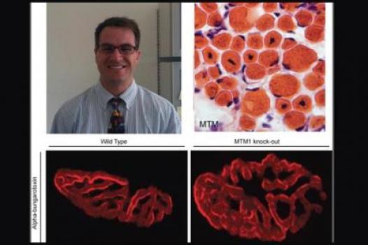 James Dowling (MTM): Pictured (top left) Dowling in his office; (top right) a muscle biopsy sample taken from a person with MTM — the large central nuclei are the defining biological features of the disease. Both bottom photos depict muscle stained with alpha bungarotoxin, a marker for the neuromuscular junction. On the left is muscle from a mouse unaffected by MTM. To the right is muscle from an MTM-affected mouse, in which the junctions clearly are significantly larger.