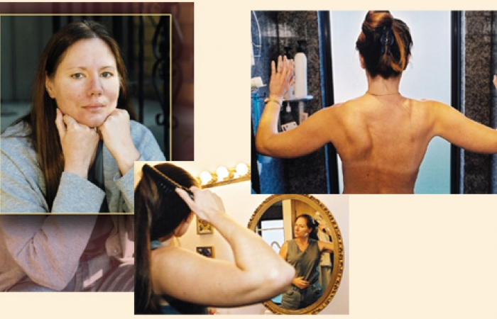 A montage with a few different pictures of Claire Walker. In the top left there's a nice portrait of her, in the middle there's a picture of her brushing her hair with one arm, and on the right there's a picture of her back, displaying her mobility after surgery