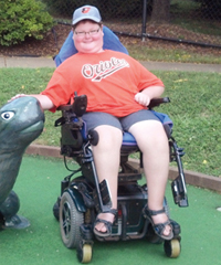 Jared Watson after his spinal fusion surgery, without a brace, at a miniature golf course.