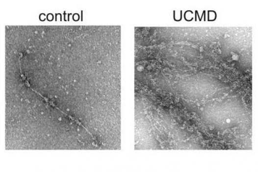 Shireen Lamande (CMD): (Left) image of a collagen 6 microfibril; (Right) unusual collagen 6 aggregates secreted by fibroblasts from a CMD patient who does not have a collagen 6 mutation. The mutation in this patient, Lamande says, might be in the gene for a protein that interacts with collagen 6.