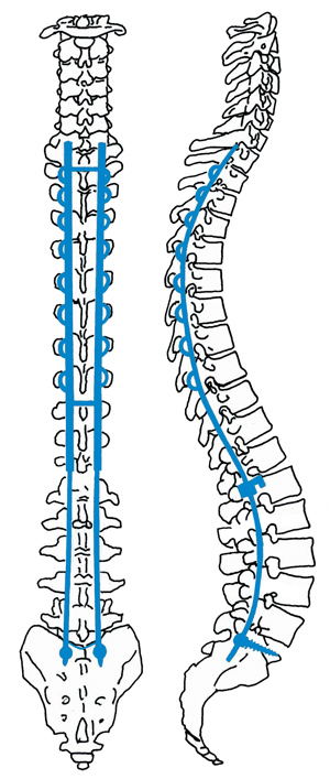 Scoliosis surgery involves using rods and screws to straighten and stabilize the spine.