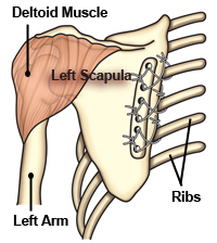 People with FSHD who have at least one strong deltoid muscle (at the top of the arm) may choose to have a surgical procedure in which the scapula (shoulder blade) is tethered to the back of the rib cage, allowing the deltoid the leverage it needs to lift the arm.