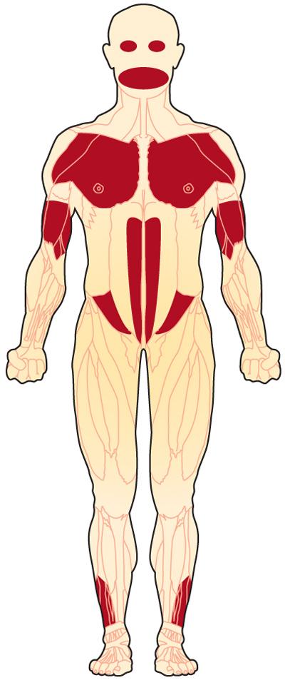 Facioscapulohumeral Muscular Dystrophy (FSH, FSHD ...