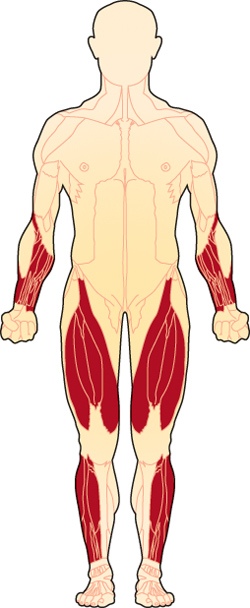 The first muscles affected in inclusion-body myositis are usually those of the wrists and fingers, and the muscles at the front of the thigh. The muscles that lift the front of the foot also may be affected.