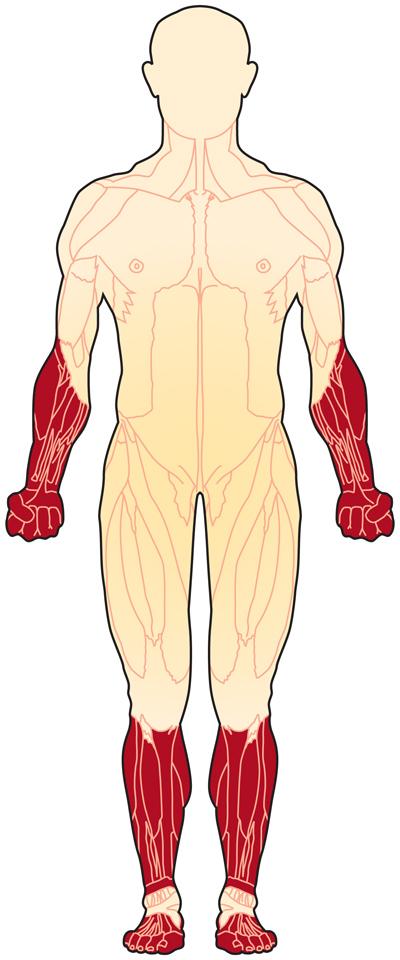 Distal Myopathies Muscular Dystrophy Association