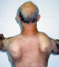 This man also shows a typical nonsymmetrical pattern of weakness, with scapular winging and slight scoliosis.