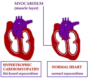 FA may lead to enlargement of the myocardium, the muscle layer of the heart.