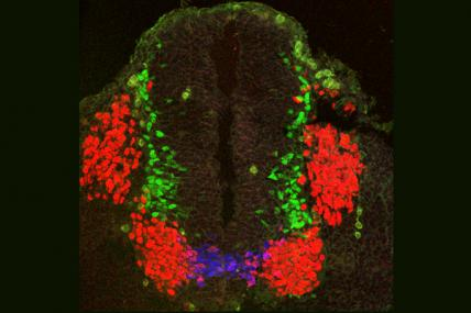 Shanthini Sockanathan (ALS): A section of a mouse embryonic spinal cord showing motor neurons (nerve cells) at different stages of development. Motor neuron progenitors (immature nerve cells) are stained blue; differentiating (developing) motor neuron progenitors are stained purple; spinal motor neurons are shown in red; and another type of nerve cell called spinal interneurons is stained green. The red groups of cells located outside and adjacent to the spinal cord are sensory neurons, activated by