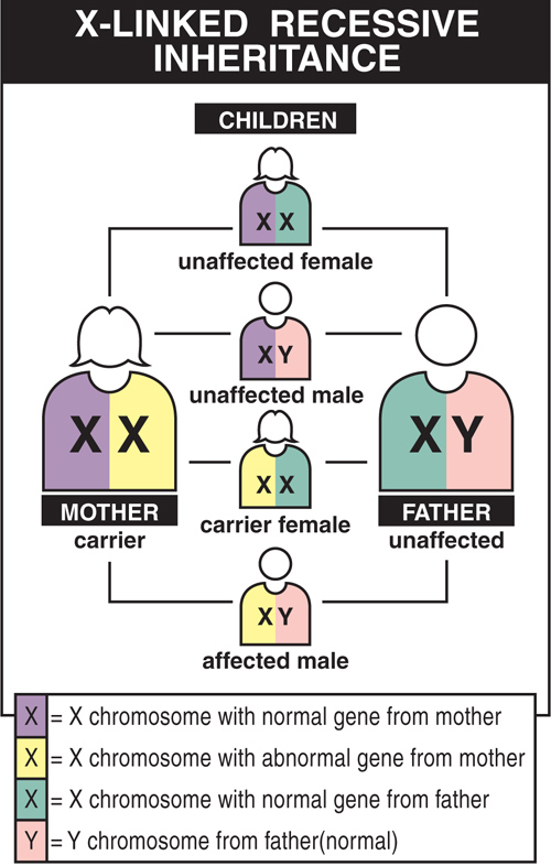 Diseases inherited in an X-linked recessive pattern mostly affect males, because a second X chromosome usually protects females from showing symptoms.