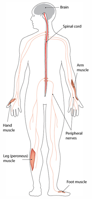 CMT causes degeneration of the peripheral nerves, leading to muscle weakness in the body's extremities.