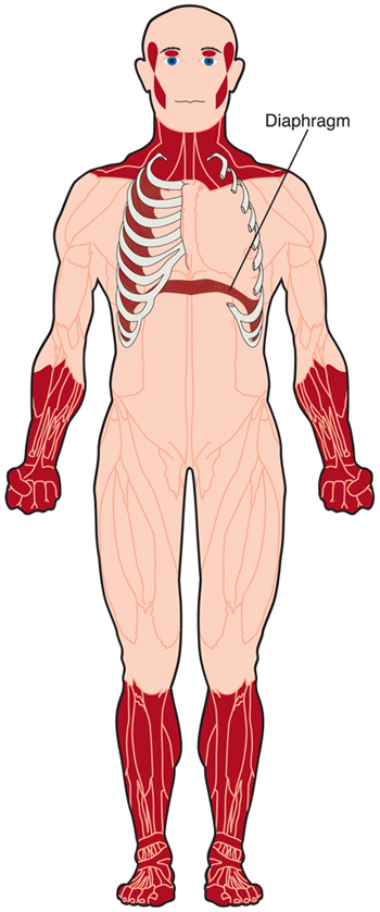 Weakness and wasting (shrinking) of voluntary muscles in the face, neck and lower arms and legs are common in type 1 myotonic dystrophy. Muscles between the ribs and those of the diaphragm, which moves up and down to allow inhalation and exhalation of air, also can be weakened.