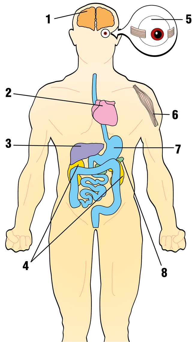 1. Nervous system: Seizures, spasms, developmental delays, deafness, dementia, stroke (often before age 40), visual system defects, poor balance, problems with peripheral nerves Heart: Cardiomyopathy (cardiac muscle weakness), conduction block Liver: Liver failure (uncommon except in babies with mtDNA depletion syndrome), fatty liver (hepatic steatosis) Kidneys: Fanconi's syndrome (loss of essential metabolites in urine), nephrotic syndrome (uncommon except for infants with coenzyme Q10 deficiency) Eyes: Drooping eyelids (ptosis), inability to move eyes (external ophthalmoplegia), blindness (retinitis pigmentosa, optic atrophy), cataracts Skeletal muscle: Muscle weakness, exercise intolerance, cramps, excretion of muscle protein myoglobin in urine (myoglobinuria) Digestive tract: Difficulty swallowing, vomiting, feeling of being full, chronic diarrhea, symptoms of intestinal obstruction Pancreas: Diabetes