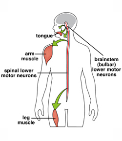 Overview spinal bulbar muscular atrophy mda What is lower motor neuron disease