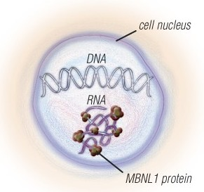 The nerve and muscle cells of people with MMD1 and MMD2 have expanded sections of DNA, which are converted to expanded sections of RNA. The RNA traps a protein called MBNL1 and has other toxic effects on the cells. Several experimental therapies that target the expanded RNA are in the pipeline.