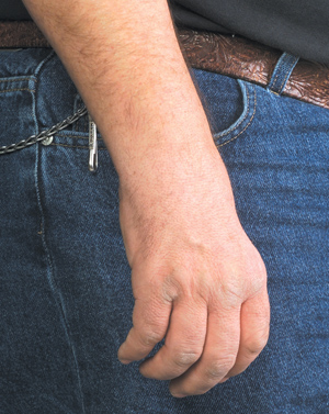 Example of a hand contracture in a person with CMT