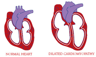 Illustration of a heart with dilated cardiomyopathy
