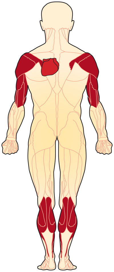 EDMD diagram of muscles