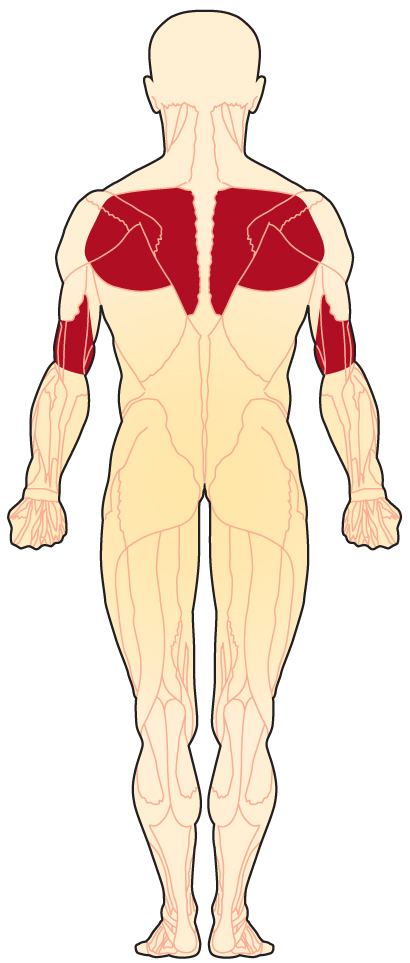Muscles affected by FSHD (back view)