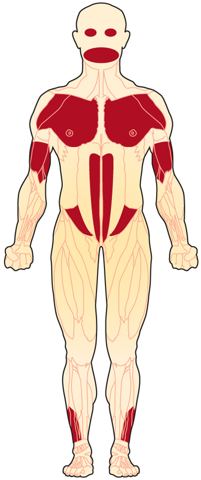 Muscles affected by FSHD (front view)