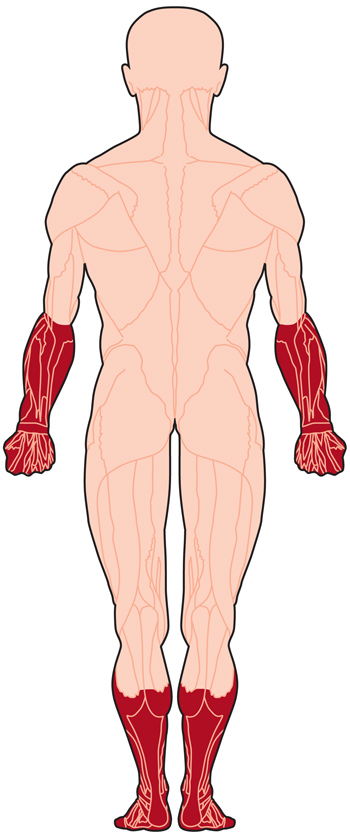 Illustration of muscles affected by MMD (back)