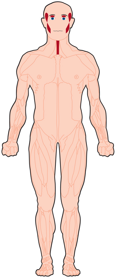 muscles affected in OPMD