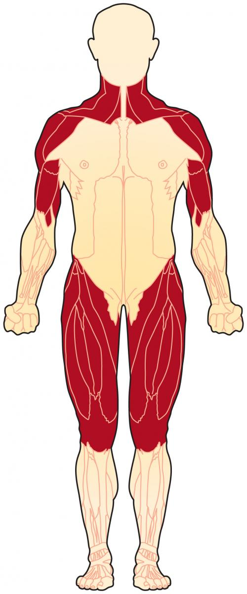 Muscles affected by polymyositis (frontal view)