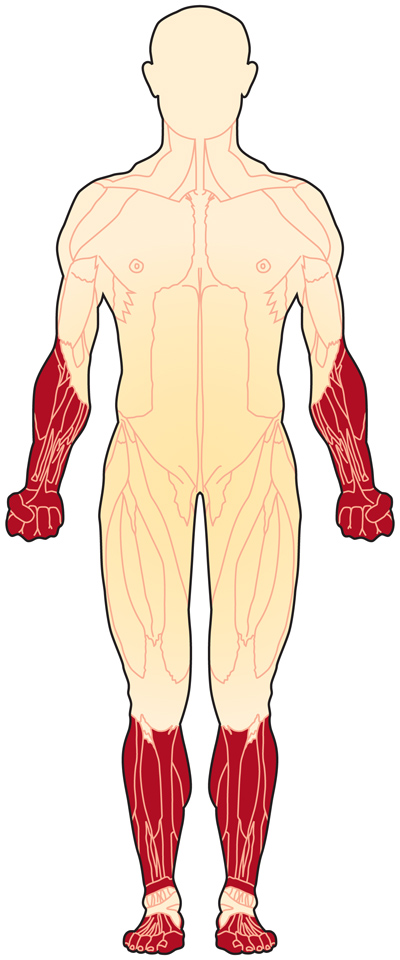 Muscles affected in distal muscular dystrophy