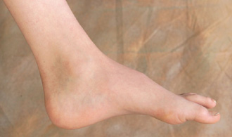 Feet with high arches are common in CMT