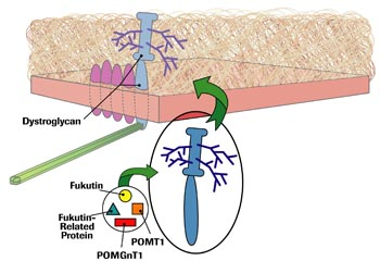 Fukutin, fukutin-related protein, POMT1 and POMGnT1 are all involved in the sugar coating of dystroglycan. Without their contributions, dystroglycan loses its ability to stick to laminin 2, and congenital MD, sometimes accompanied by eye or brain abnormalities, results.