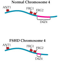 On an FSHD chromosome, the DNA sequence is repeated fewer than 11 times.