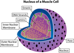 EDMD can be caused by abnormalities of one of the lamins or of emerin, located in or near the inner membrane of the nuclear envelope. Lamin abnormalities, and possibly emerin abnormalities, can trigger abnormal activation of a heart-damaging pathway.