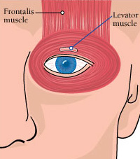 In OPMD, the levator muscle weakens, causing the upper eyelid to droop. To offset this, a surgeon can remove excess skin from the upper eyelid; tighten the levator; tighten the nearby Muller's muscle; or attach the frontalis muscle to the eyelid.