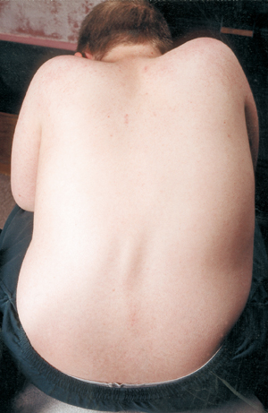 View of a boy with scoliosis