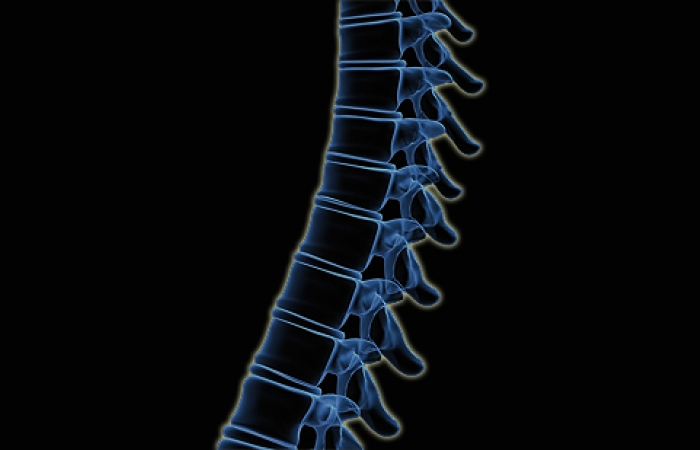 Quest - Article - In Focus: Straightening the Growing Spine