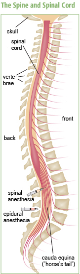 Spinal curvatures and the spinal fusion procedures sometimes used to treat them can interfere with the effectiveness of spinal or epidural anesthesia. The medication-delivering catheter for spinal anesthesia is usually placed a little higher and penetrates a little more deeply than the catheter to deliver epidural anesthesia.