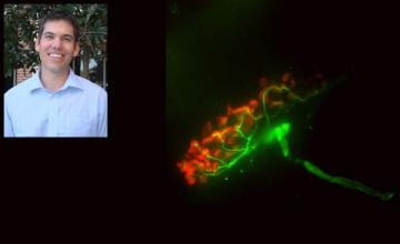 Darin Falk (Pompe): next to an image of mouse neuromuscular junction