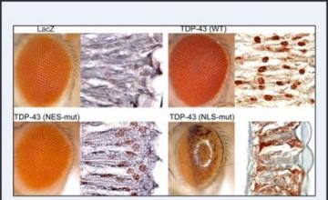 Steven Greenberg (IBM): Mislocalization of TDP43 protein causes degeneration in the eyes of 1-day-old fruit flies. Greenberg, and co-principal investigator J. Paul Taylor, will examine the effects of similar TDP43 redistribution in inclusion-body myositis, with a particular focus on whether it causes damage to muscle fibers.