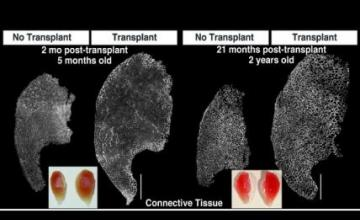 Bradley Olwin (DMD): Depicted a mouse muscle that was transplanted and examined after two months, and one that was transplanted and examined after two years. The transplanted muscles and the non-transplanted muscles in the other legs are both shown. The muscle size dramatically increases after transplantation and remains large for the lifetime of the mouse.