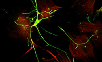 Cultured motor neurons (in green) and astrocytes (in red) from the spinal cords of ALS transgenic mice.
