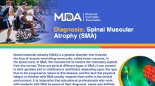 Downloadable educational flyer on Spinal Muscular Atrophy.